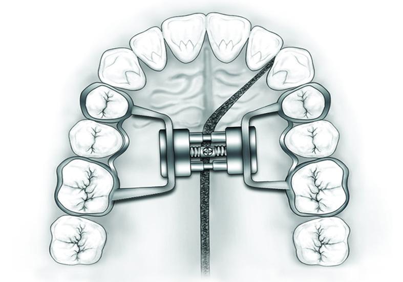 disegno ronchi - Lab 2AR laboratorio odontotecnico